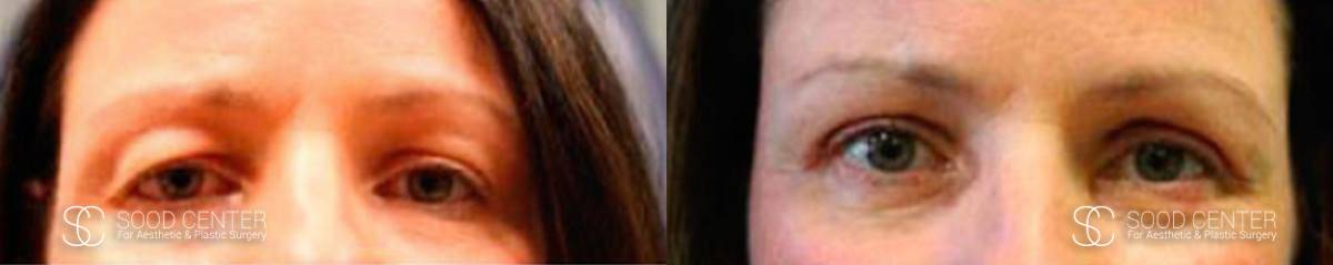 Blepharoplasty Before and After Photos - Patient 5