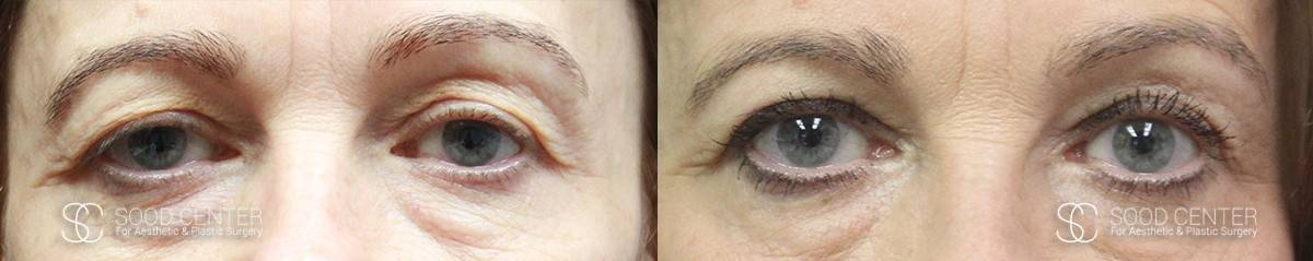 Blepharoplasty Before and After Photos - Patient 1