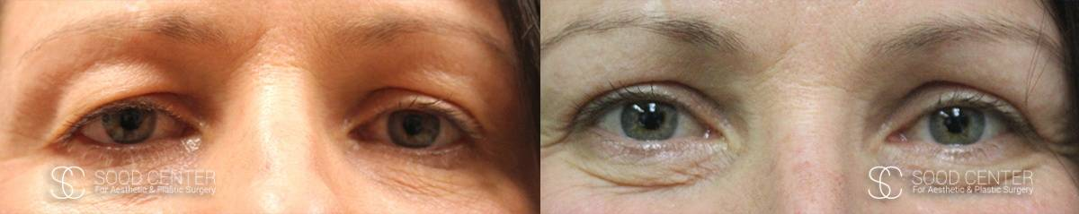 Blepharoplasty Before and After Photos - Patient 2