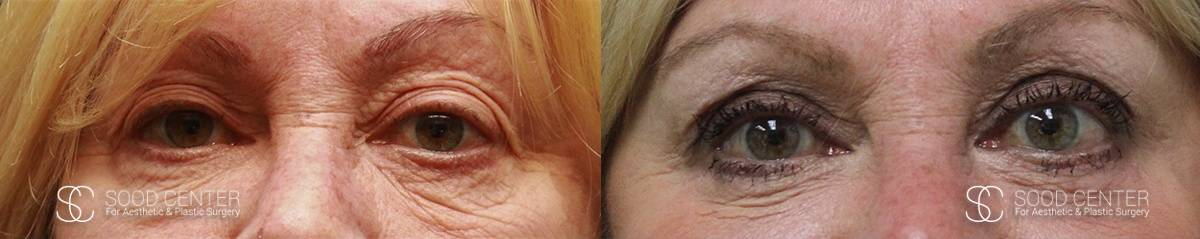 Blepharoplasty Before and After Photos - Patient 3