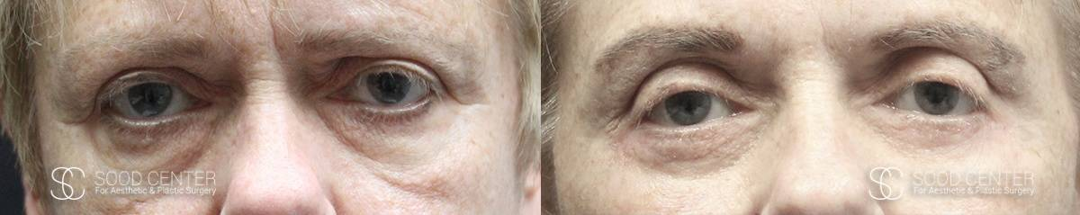 Blepharoplasty Before and After Photos - Patient 4