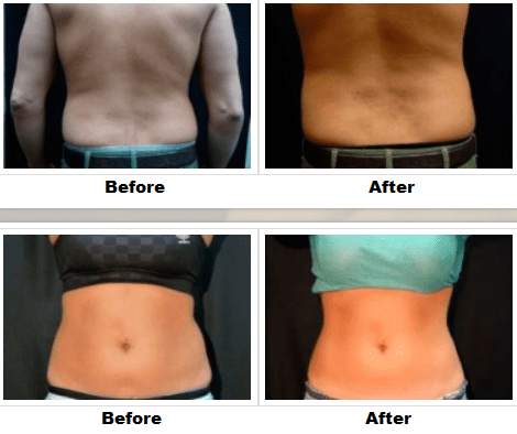 CoolSculpting-before-and-after-2