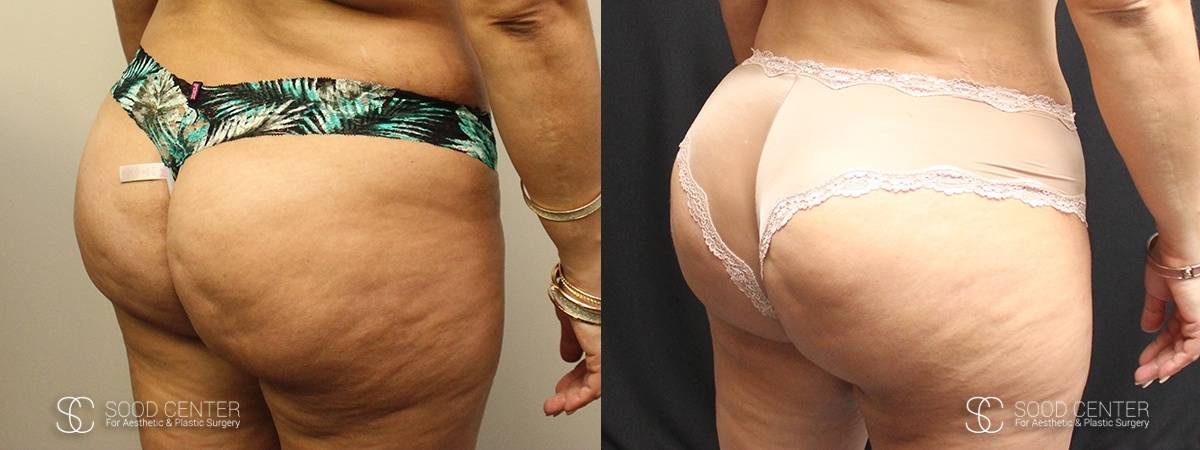 Brazilian Butt Lift Before and After Photos - Patient 1A