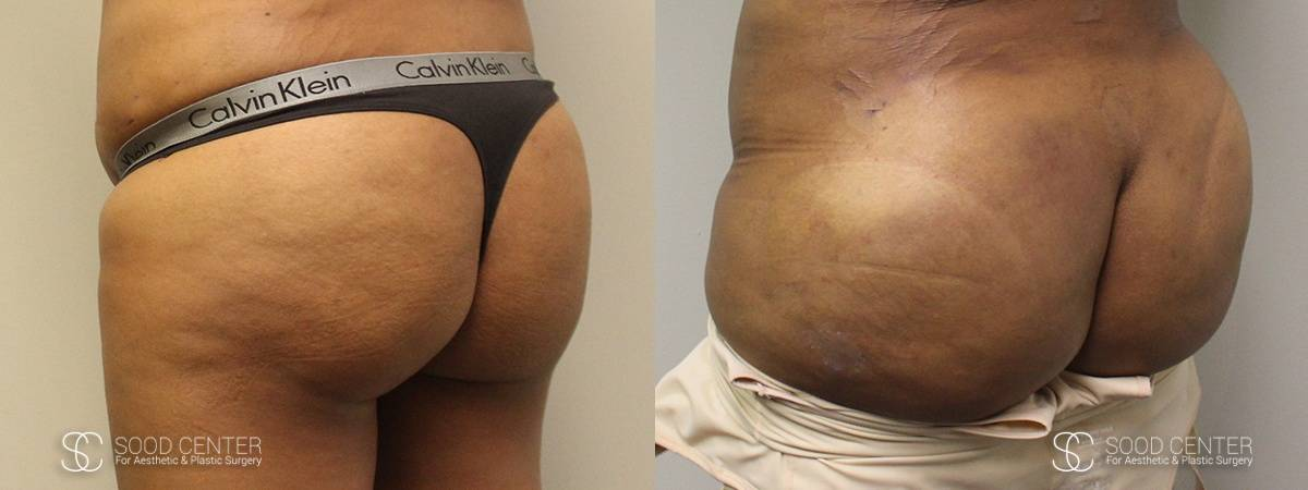 Brazilian Butt Lift Before and After Photos - Patient 2A