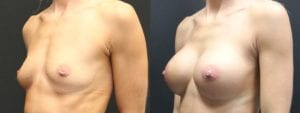 Breast Augmentation Before and After Photos - Patient 9B