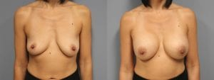 Breast Augmentation Before and After Photos - Patient 10A