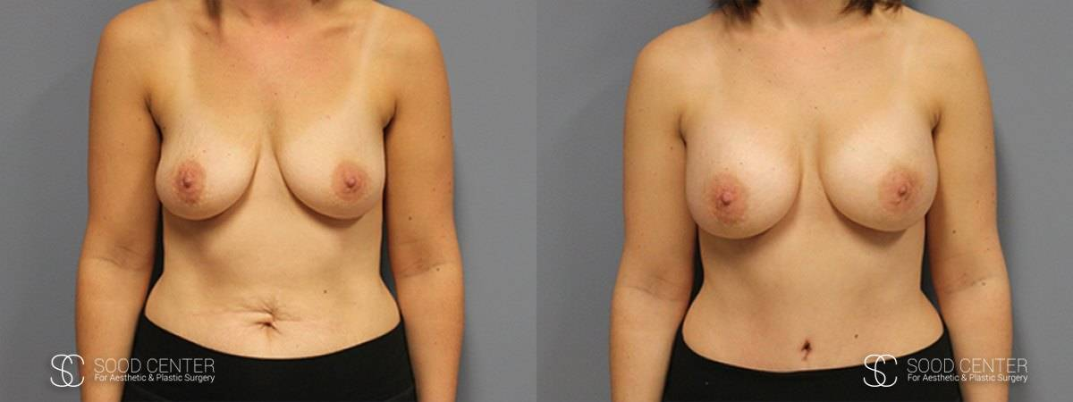 Breast Augmentation Before and After Photos - Patient 11A
