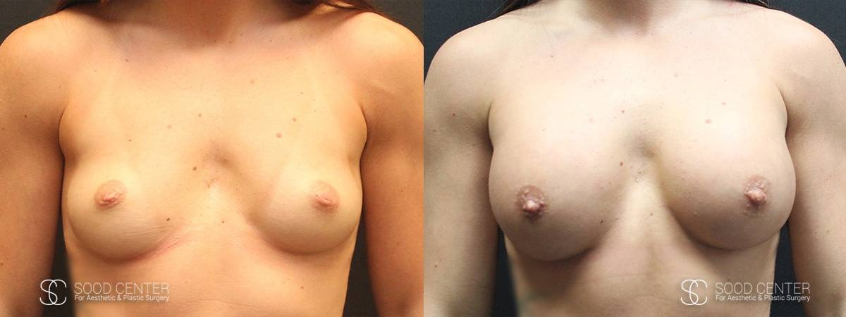 Breast Augmentation Before and After Photos - Patient 1A