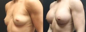 Breast Augmentation Before and After Photos - Patient 1C