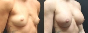 Breast Augmentation Before and After Photos - Patient 1B