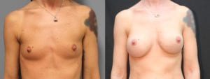 Breast Augmentation Before and After Photos - Patient 3A