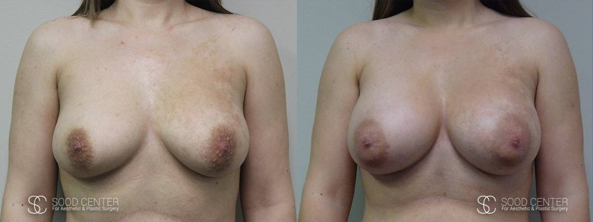 Breast Augmentation Before and After Photos - Patient 4A