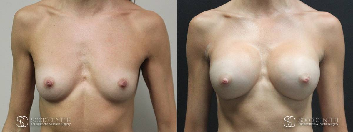 Breast Augmentation Before and After Photos - Patient 5A