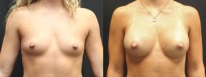 Breast Augmentation Before and After Photos - Patient 6A