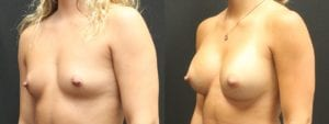 Breast Augmentation Before and After Photos - Patient 6B