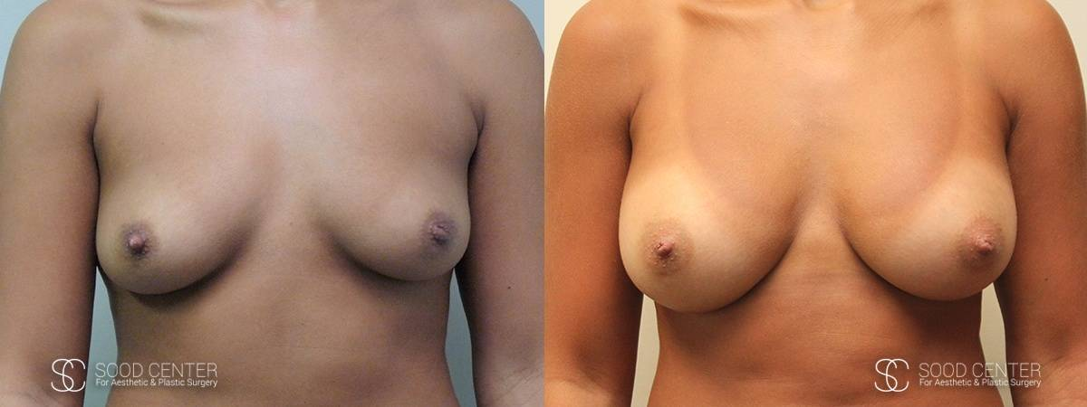 Breast Augmentation Before and After Photos - Patient 7A
