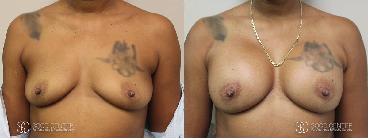 Breast Augmentation Before and After Photos - Patient 8