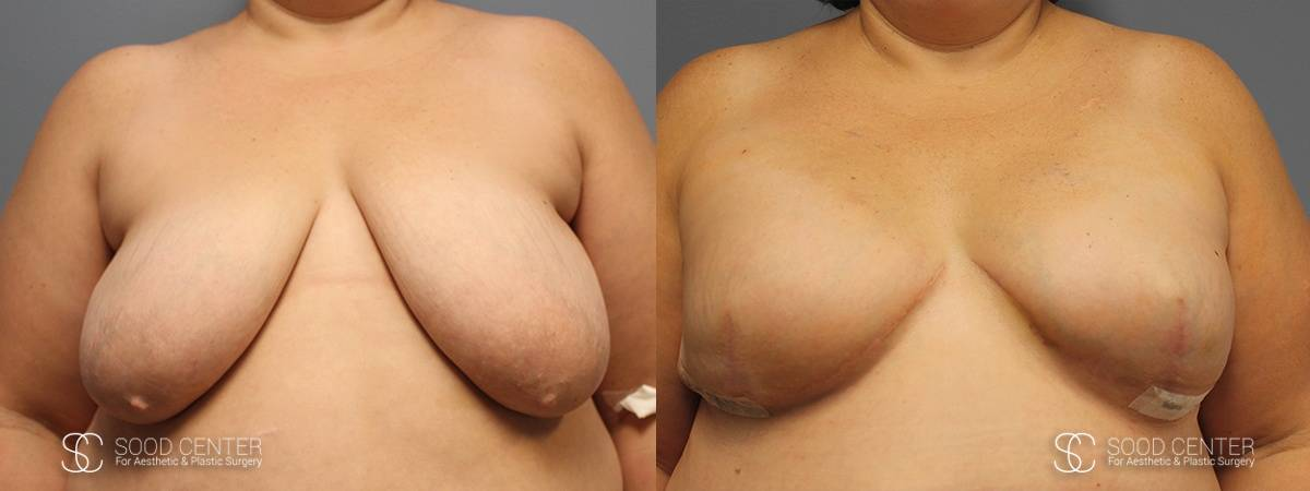 Breast Reconstruction Before and After Photos - Patient 1