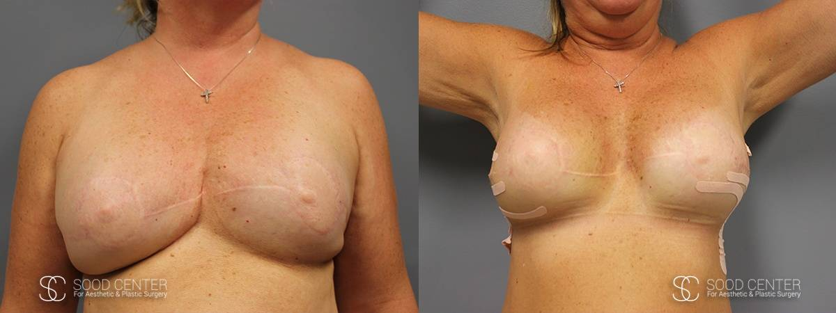 Breast Reconstruction Before and After Photos - Patient 2