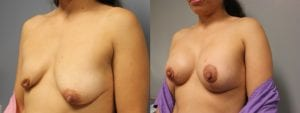 Breast Reconstruction Before and After Photos - Patient 3B
