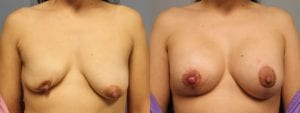 Breast Reconstruction Before and After Photos - Patient 3A