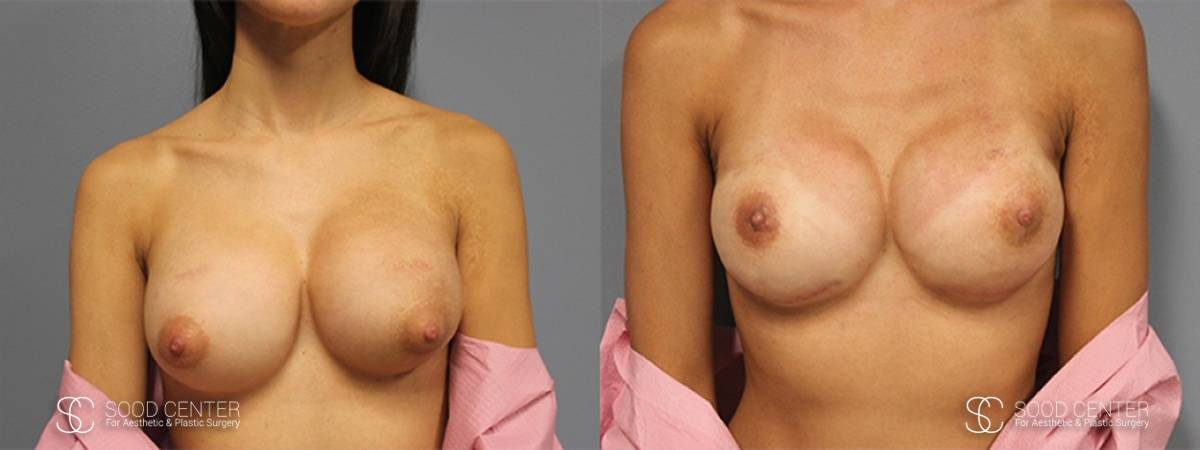 Breast Reconstruction Before and After Photos - Patient 4