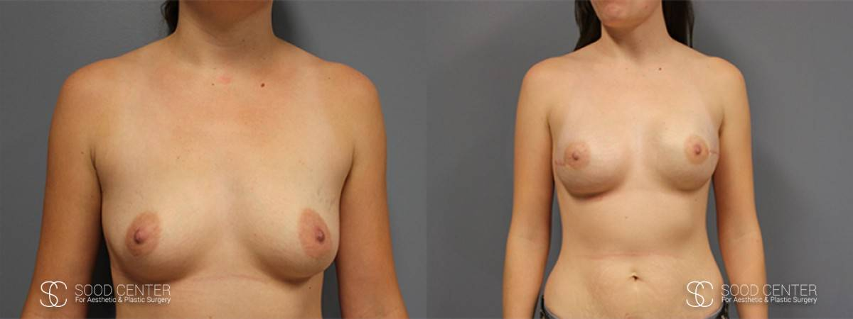 Breast Reconstruction Before and After Photos - Patient 5A