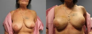 Breast Reconstruction Before and After Photos - Patient 6A