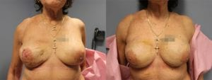 Breast Reconstruction Before and After Photos - Patient 6B