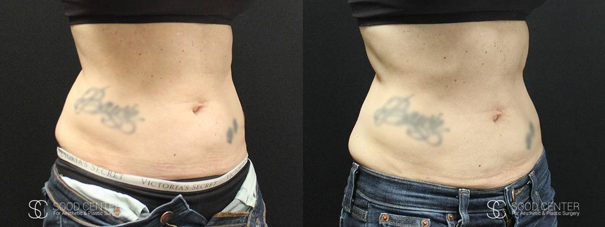Coolsculpting Before and After Photos - Patient 9