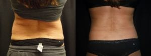 Coolsculpting Before and After Photos - Patient 10A