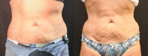 Coolsculpting Before and After Photos - Patient 12B