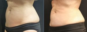Coolsculpting Before and After Photos - Patient 17C