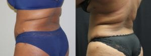 Coolsculpting Before and After Photos - Patient 18B