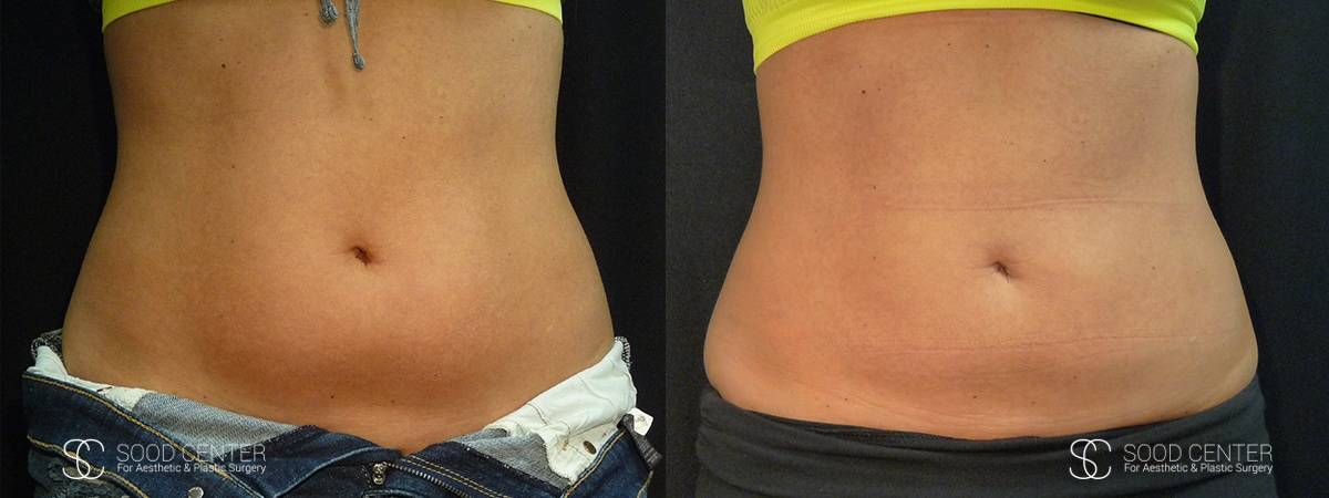 Coolsculpting Before and After Photos - Patient 19A