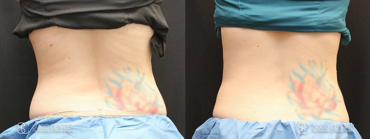 Coolsculpting Before and After Photos - Patient 21A