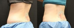 Coolsculpting Before and After Photos - Patient 21B