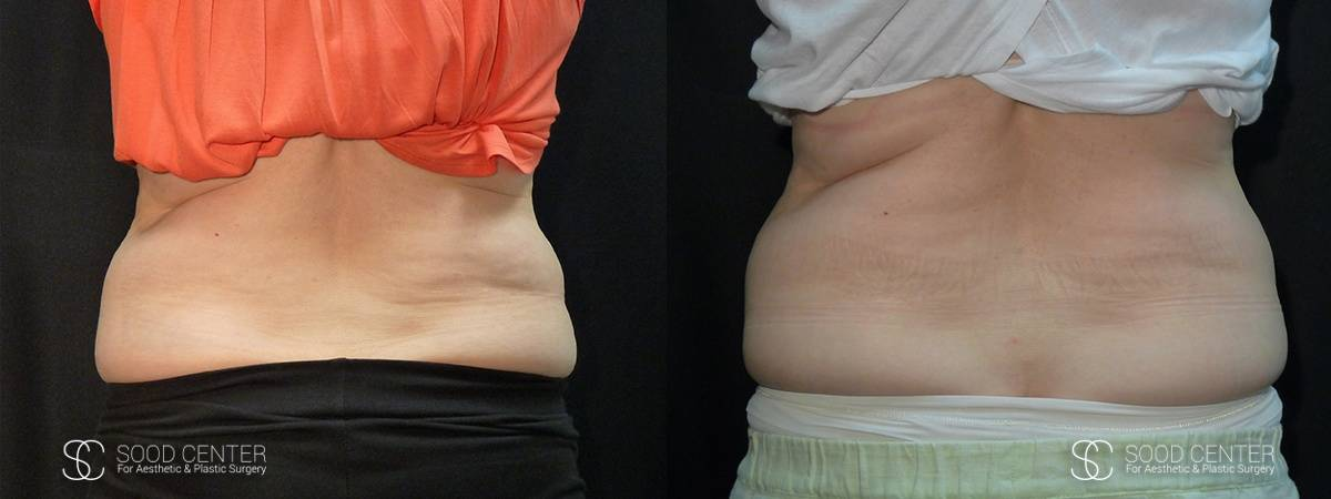 Coolsculpting Before and After Photos - Patient 22A