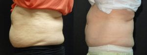 Coolsculpting Before and After Photos - Patient 22C