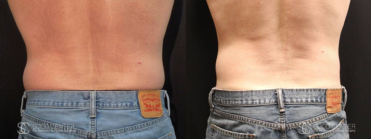 Coolsculpting Before and After Photos - Patient 24A