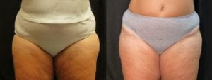 Coolsculpting Before and After Photos - Patient 25A