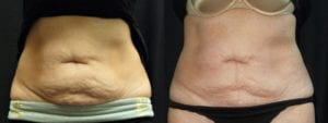 Coolsculpting Before and After Photos - Patient 28C