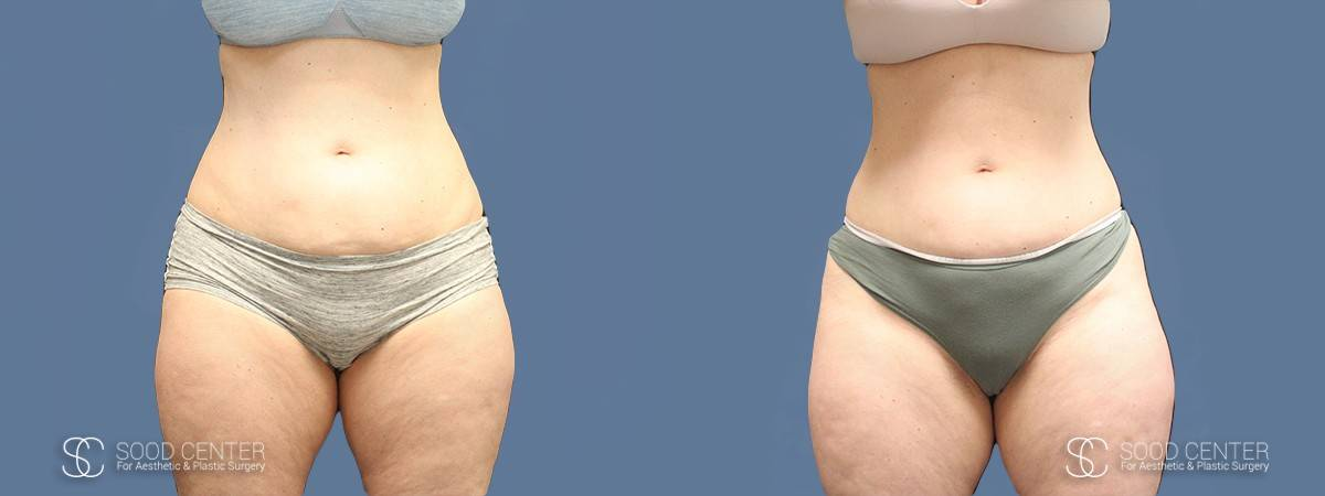 Coolsculpting Before and After Photos - Patient 5