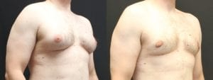 Gynecomastia Before and After Photo - Patient 2B