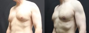 Gynecomastia Before and After Photo - Patient 3B