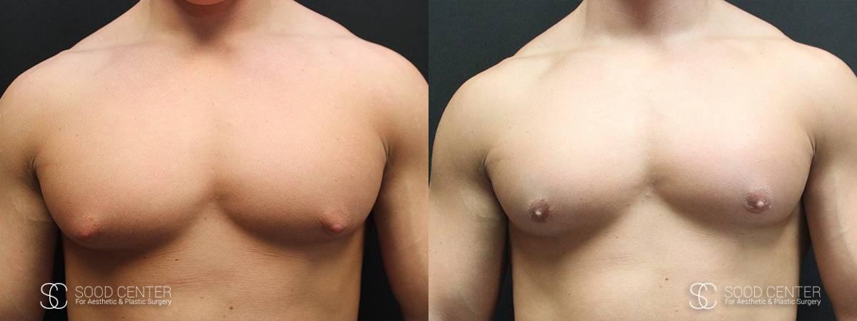 Gynecomastia Before and After Photo - Patient 6A