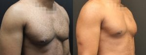 Gynecomastia Before and After Photo - Patient 8B