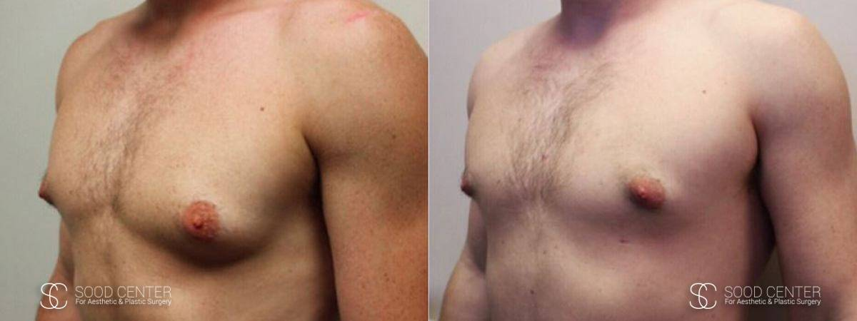Gynecomastia Before and After Photo - Patient 9