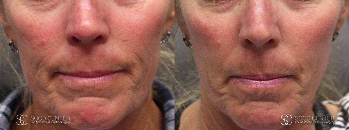 IPL Treatment Before and After Photo - Patient 2