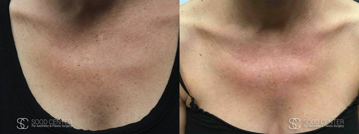 IPL Treatment Before and After Photo - Patient 3